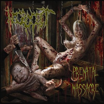 "Necrocest ""Prenatal Massacre"" 5/6"